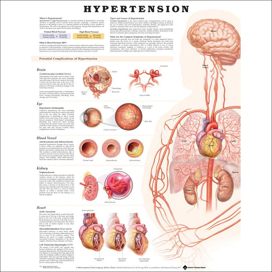 hypertension Hypertension remains a common medical problem and a leading cause of cardiovascular disease treatment preserves health and prevents death.