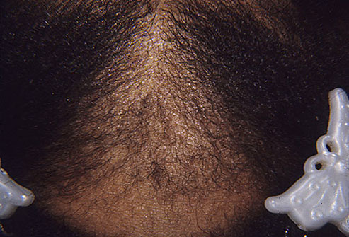 Itchy Scalp Hair Loss