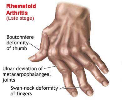 Rheumatoid Arthritis Signs And Symptoms