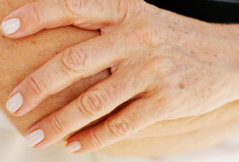common warts on fingers. lessen their appearance.