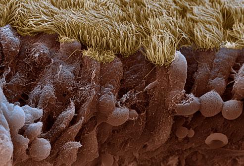 Sinus Infection Mucus