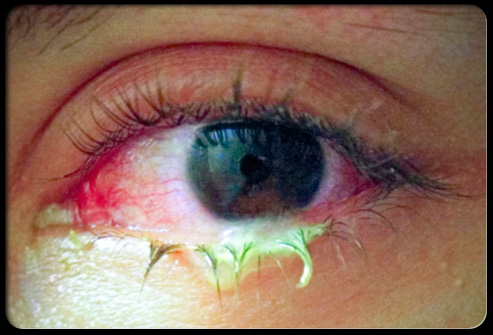Pink eye, or conjunctivitis, is redness and inflammation of the membranes
