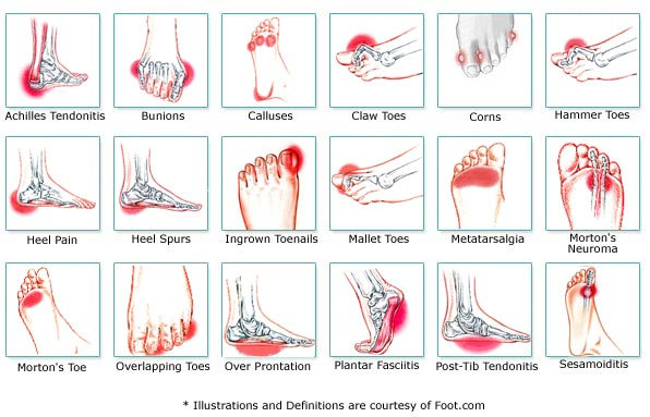foot conditions in children