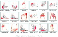 foot conditions bunions