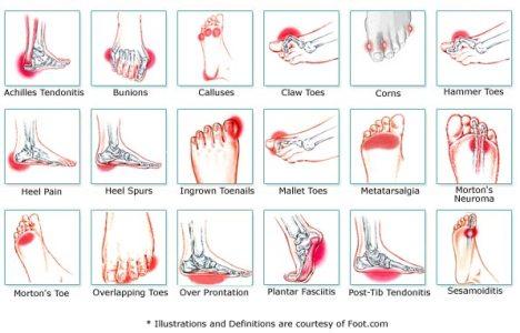 Sakit kaki Sebab dan Rawatan