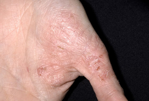 nummular eczema topical steroid withdrawal