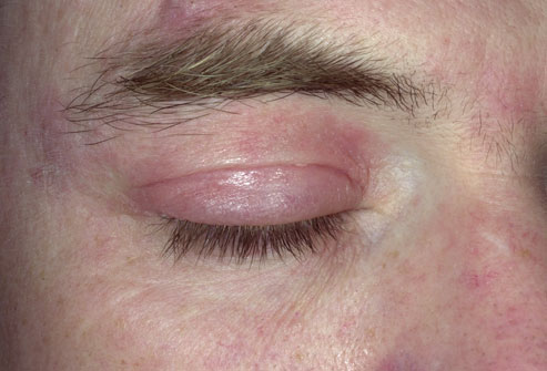 Condyloma anus picture dermtology