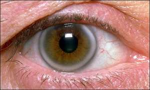 mata gegelang putih