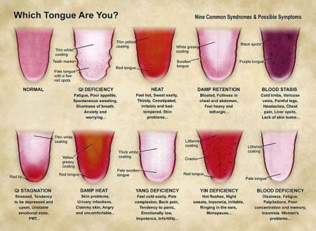 simptom lidah